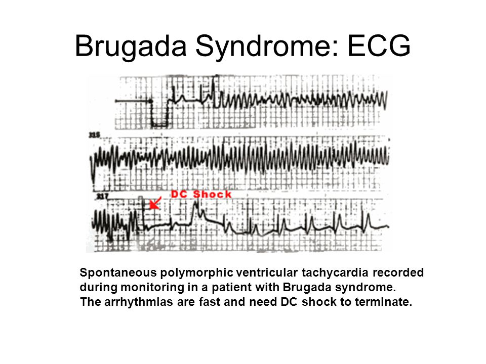 Brugada Syndrome: ECG