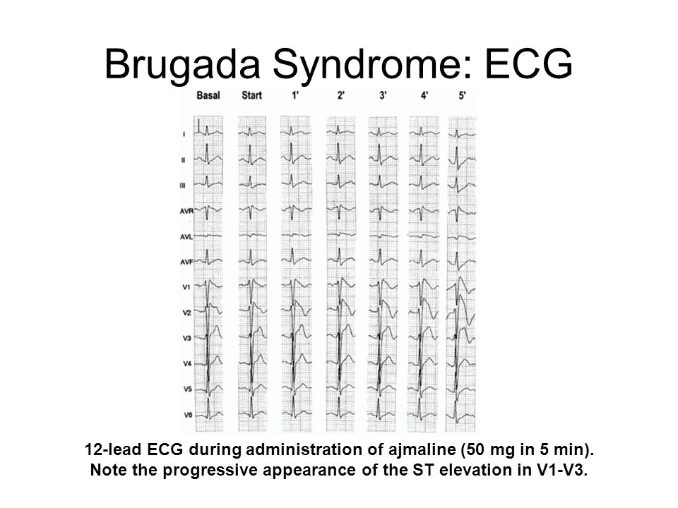12-lead ECG during administration of ajmaline (50 mg in 5 min).