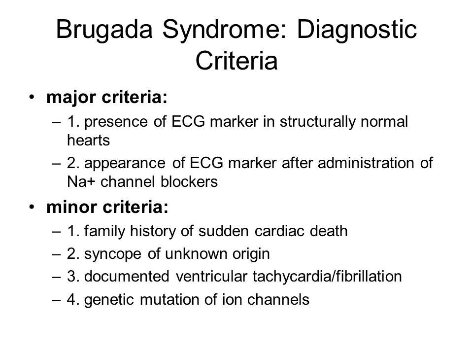 Brugada Syndrome: Diagnostic Criteria