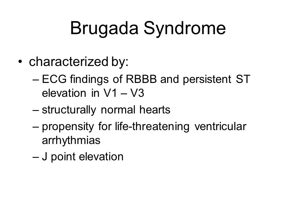 Brugada Syndrome characterized by: