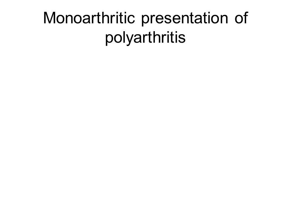 Monoarthritic presentation of polyarthritis
