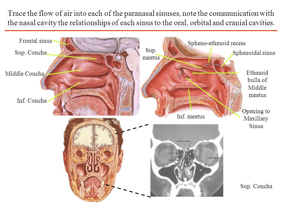 Trace the flow of air into each of the paranasal sinuses, note the communication with the nasal cavity the relationships of each sinus to the oral, orbital and cranial cavities.