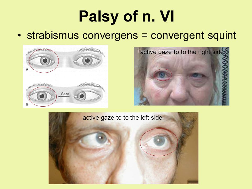 Palsy of n. VI strabismus convergens = convergent squint