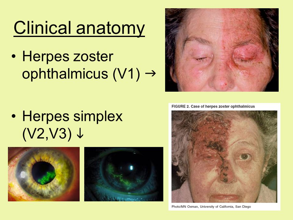 Clinical anatomy Herpes zoster ophthalmicus (V1) 