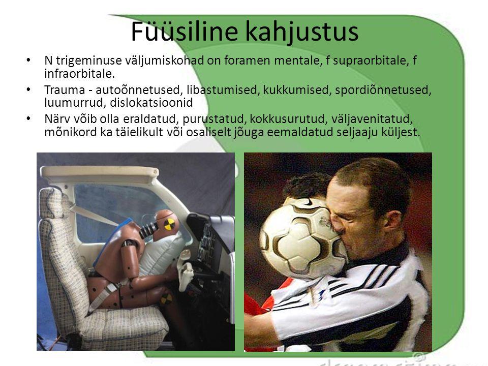 Füüsiline kahjustus N trigeminuse väljumiskohad on foramen mentale, f supraorbitale, f infraorbitale.