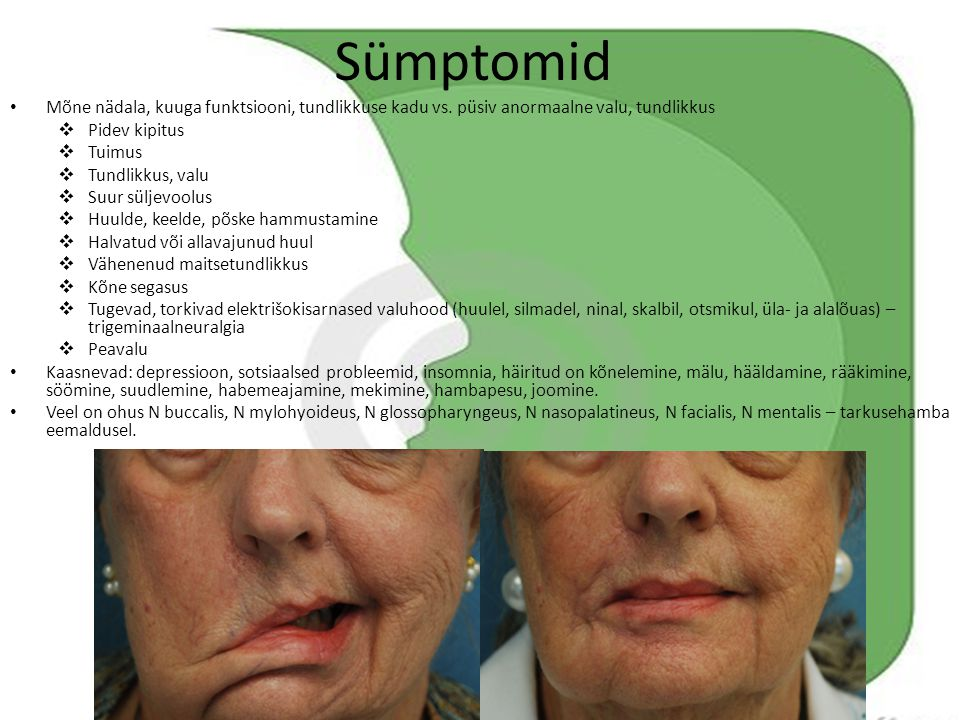 Sümptomid Mõne nädala, kuuga funktsiooni, tundlikkuse kadu vs. püsiv anormaalne valu, tundlikkus. Pidev kipitus.