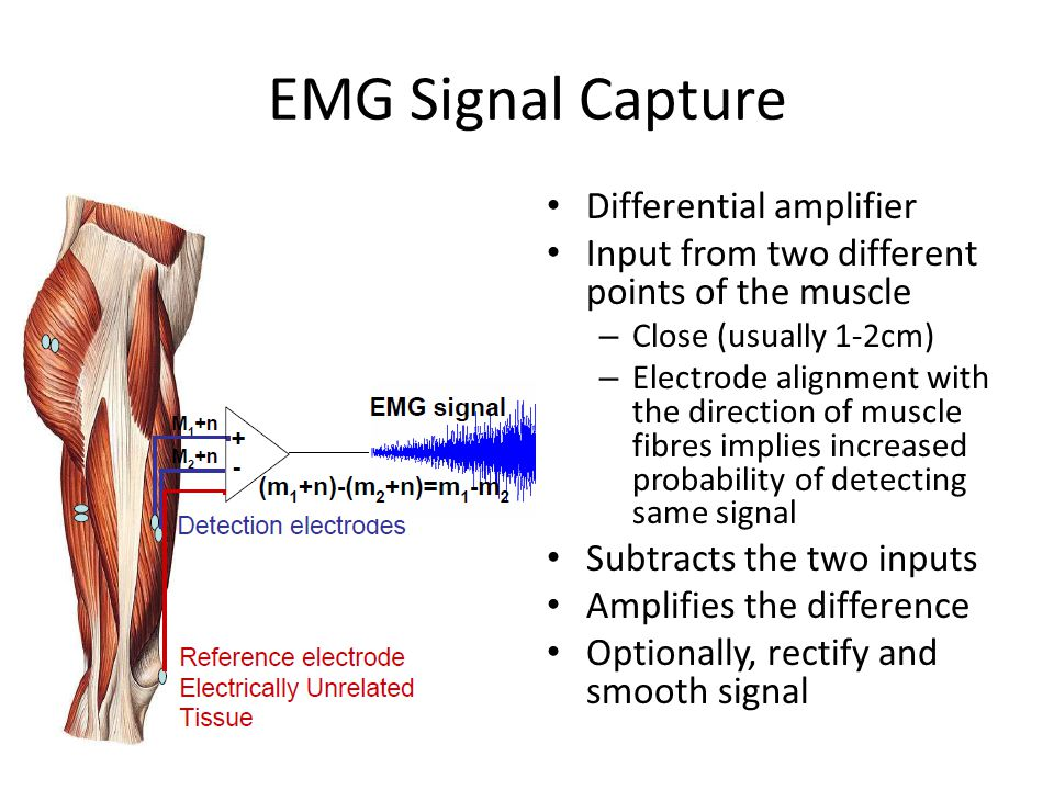 EMG Signal Capture Differential amplifier