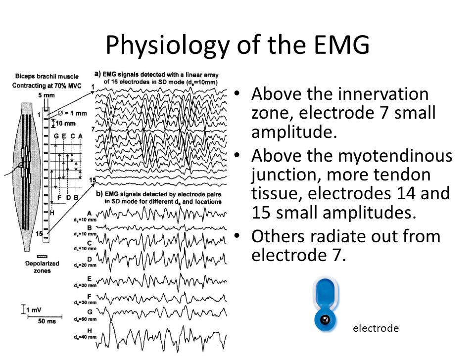 Physiology of the EMG Above the innervation zone, electrode 7 small amplitude.