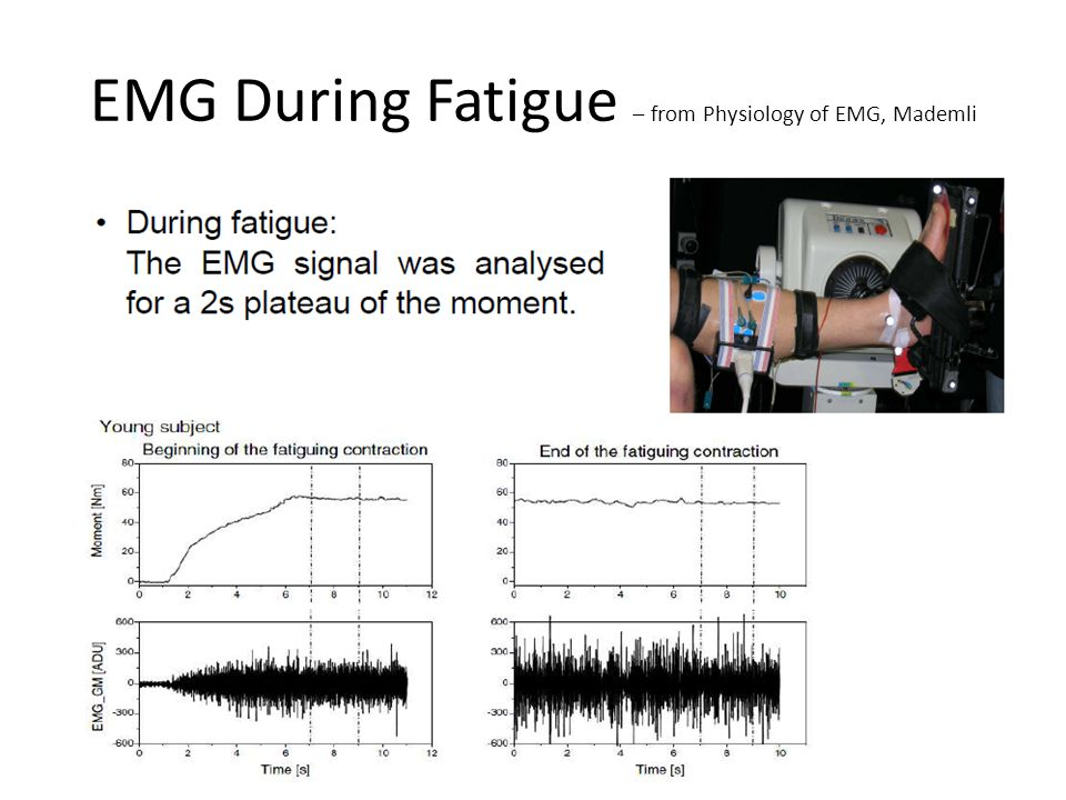EMG During Fatigue – from Physiology of EMG, Mademli
