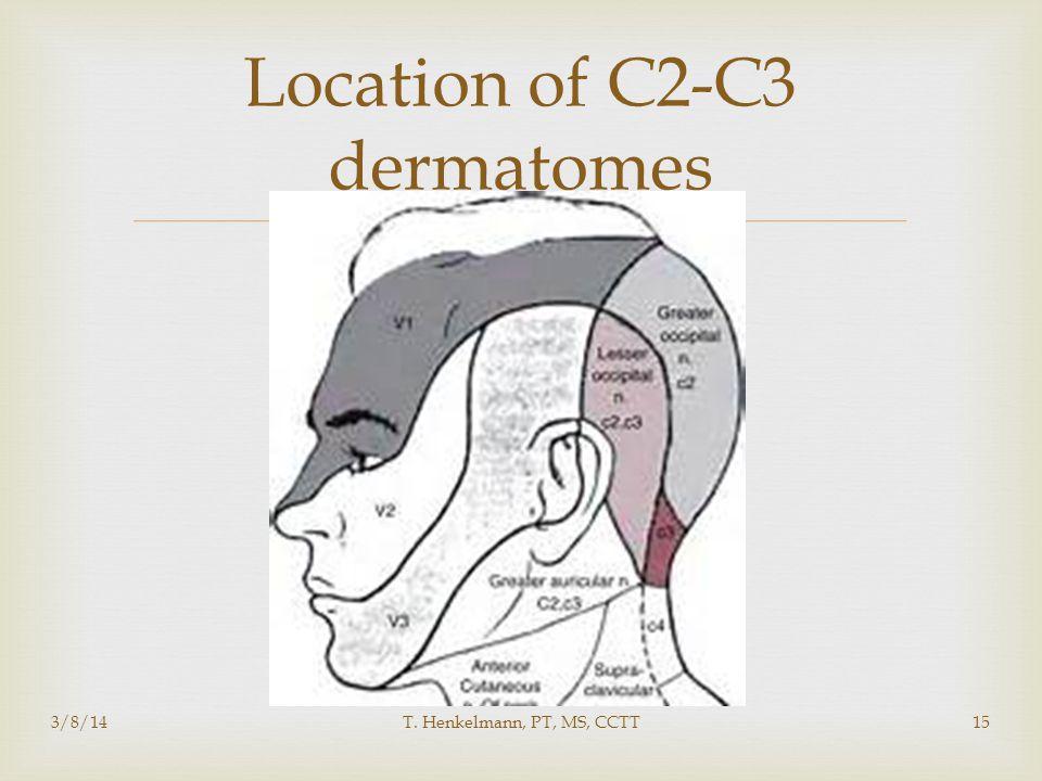 Location of C2-C3 dermatomes