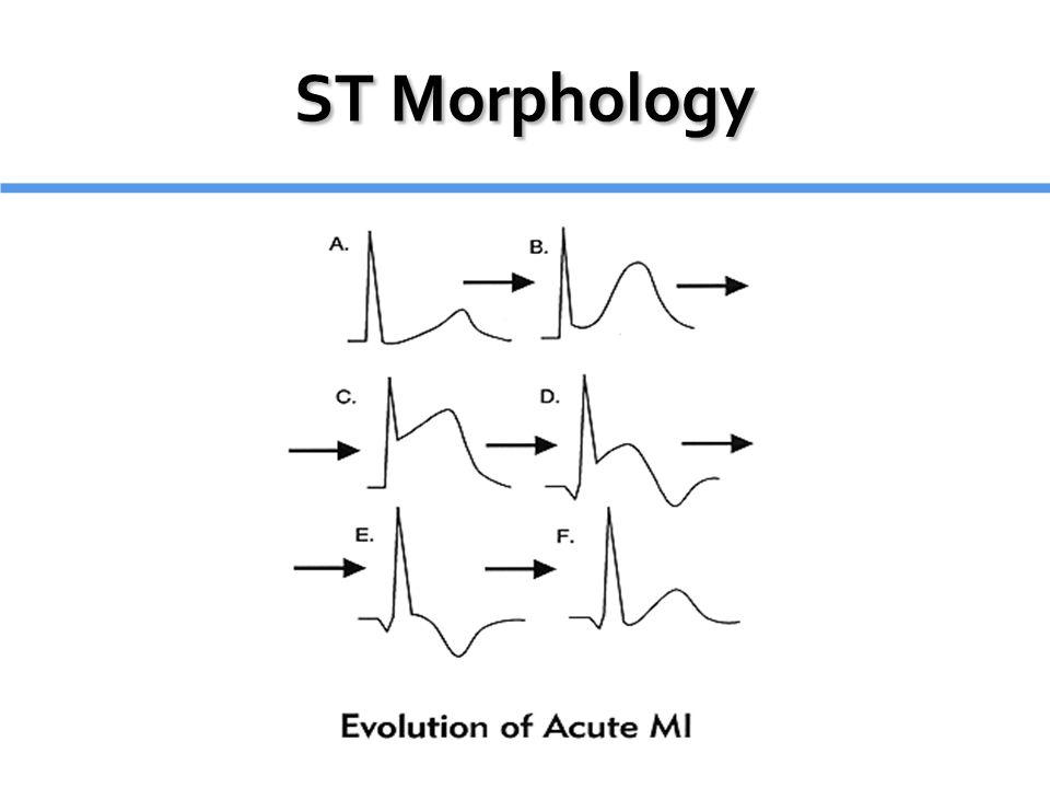 ST Morphology