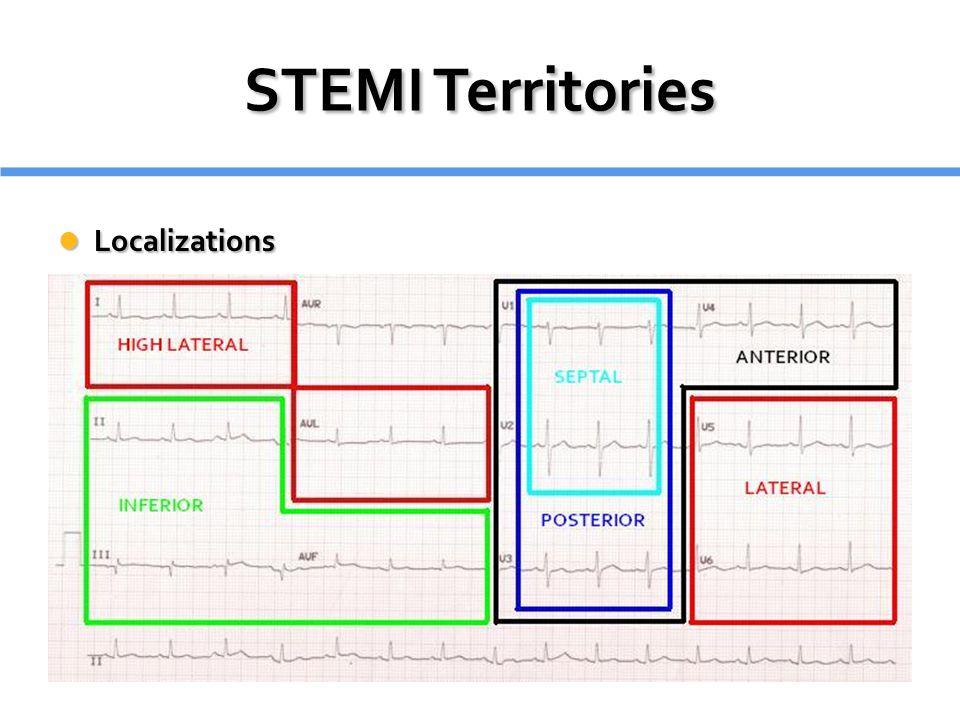 STEMI Territories Localizations