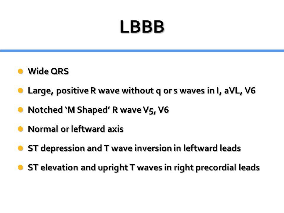 LBBB Wide QRS. Large, positive R wave without q or s waves in I, aVL, V6. Notched 'M Shaped' R wave V5, V6.
