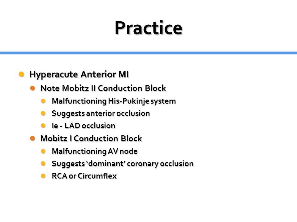 Practice Hyperacute Anterior MI Note Mobitz II Conduction Block
