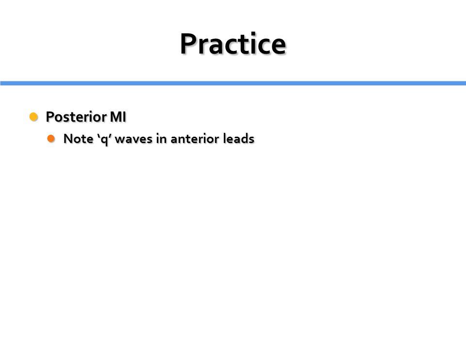 Practice Posterior MI Note 'q' waves in anterior leads