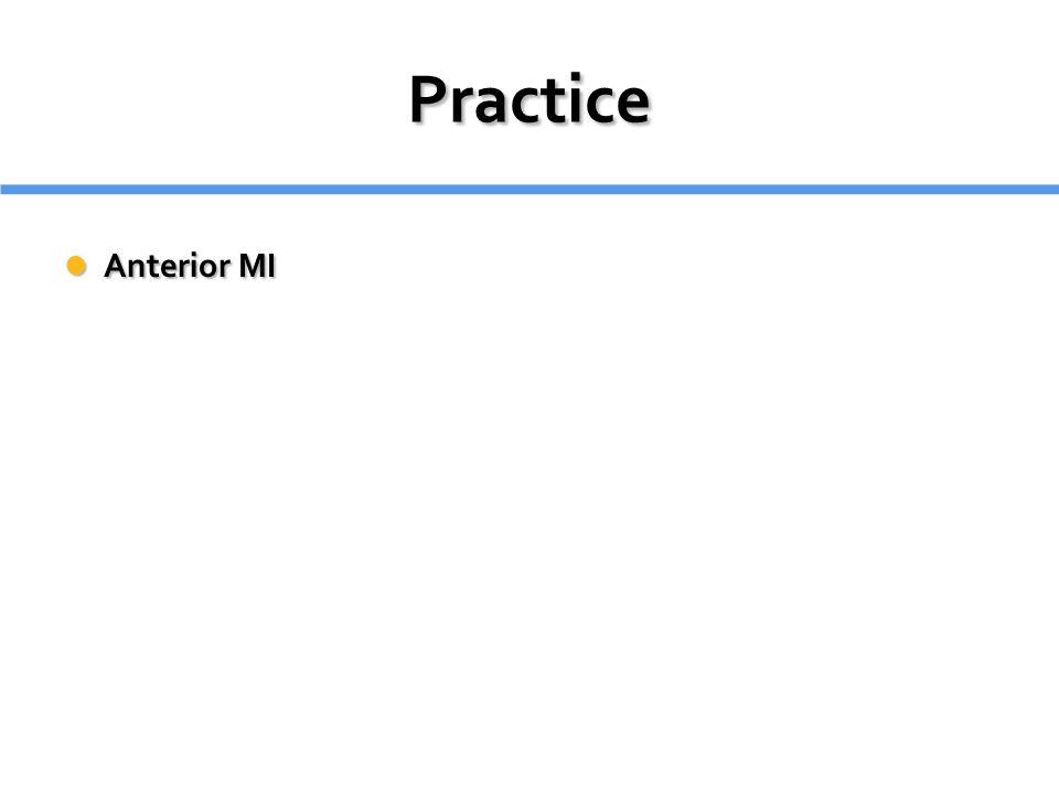 Practice Anterior MI