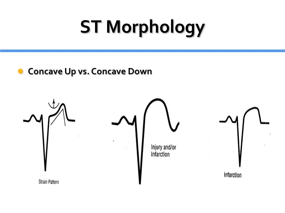 ST Morphology Concave Up vs. Concave Down