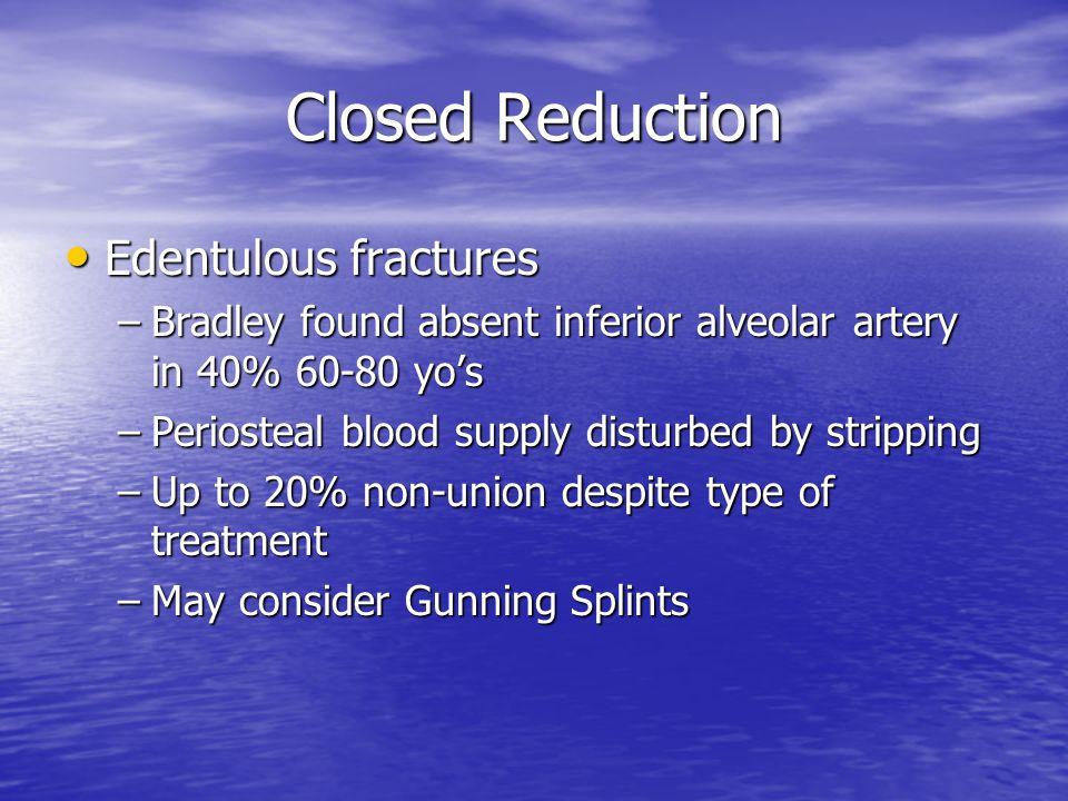 Closed Reduction Edentulous fractures