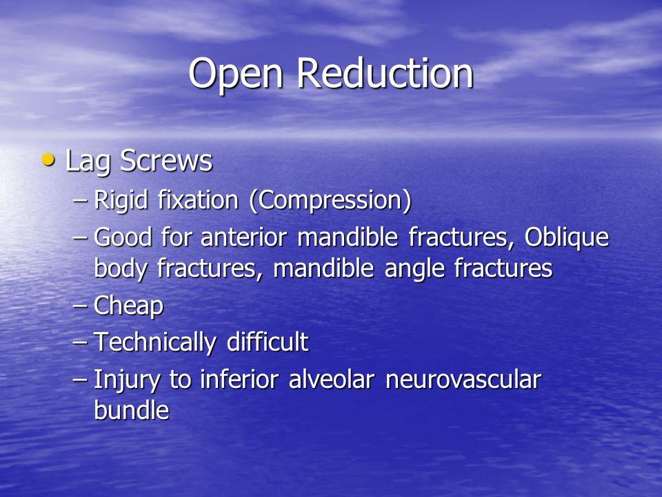 Open Reduction Lag Screws Rigid fixation (Compression)