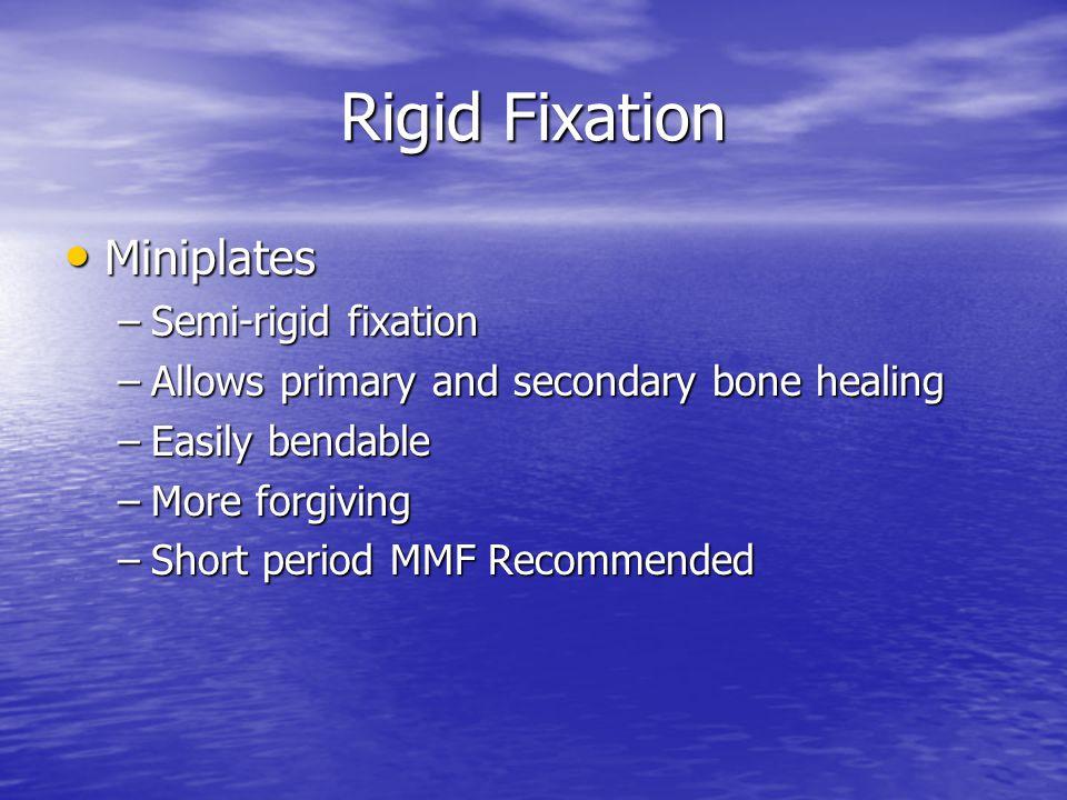Rigid Fixation Miniplates Semi-rigid fixation