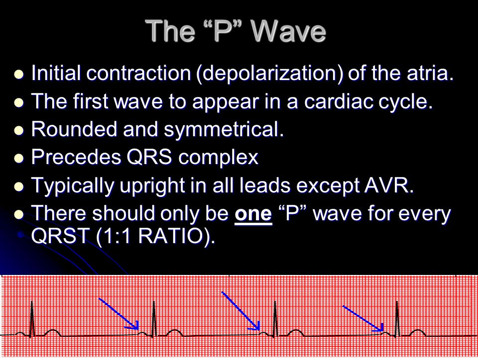 The P Wave Initial contraction (depolarization) of the atria.