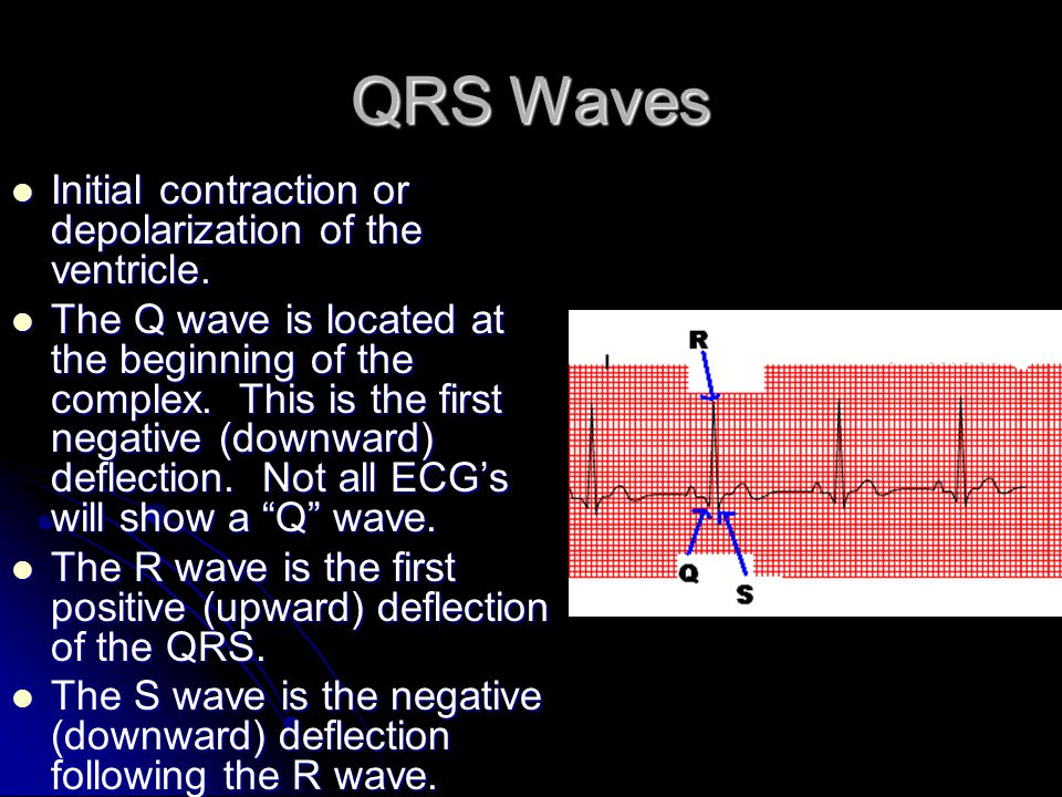 QRS Waves Initial contraction or depolarization of the ventricle.