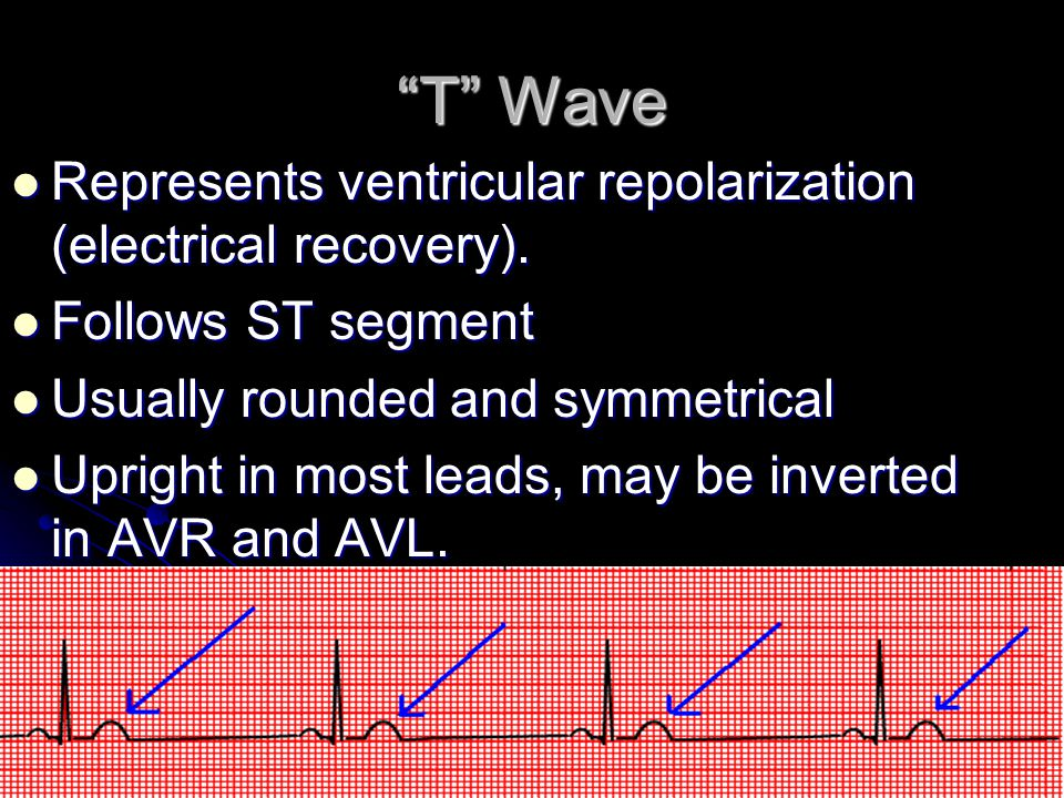 T Wave Represents ventricular repolarization (electrical recovery).