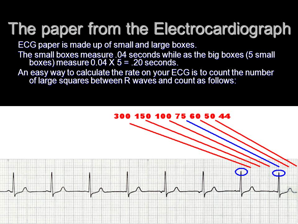 The paper from the Electrocardiograph