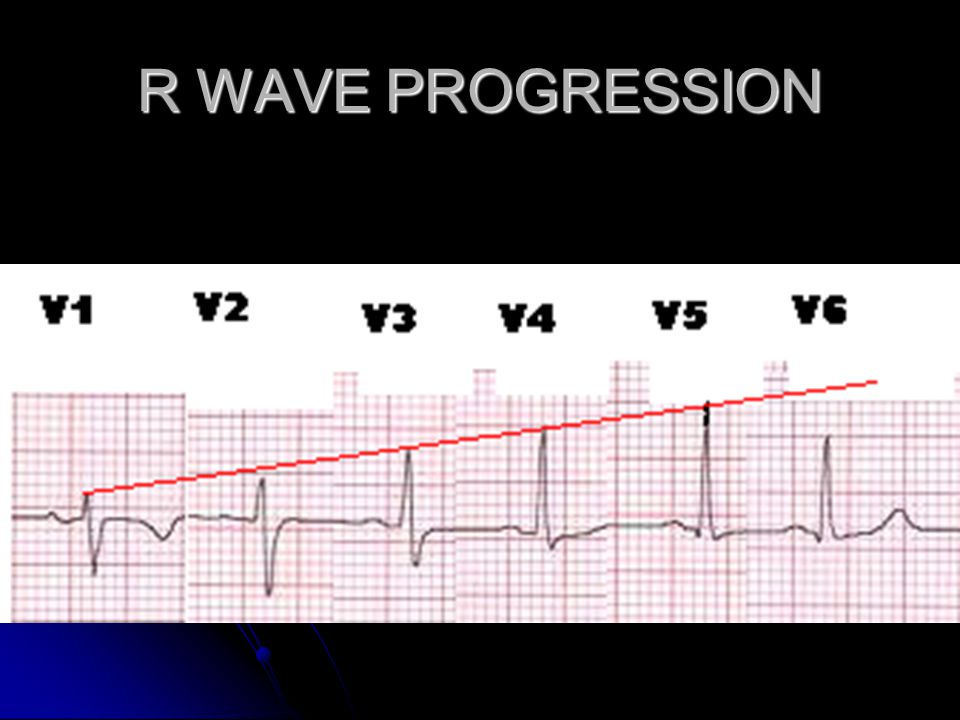 R WAVE PROGRESSION
