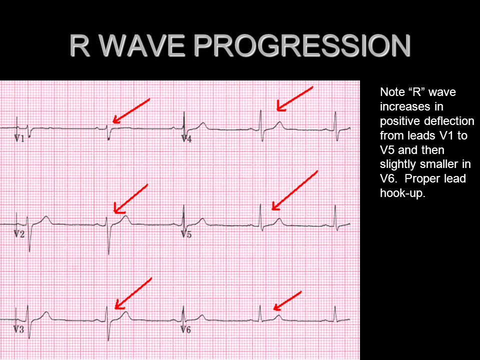 R WAVE PROGRESSION Note R wave increases in positive deflection from leads V1 to V5 and then slightly smaller in V6.