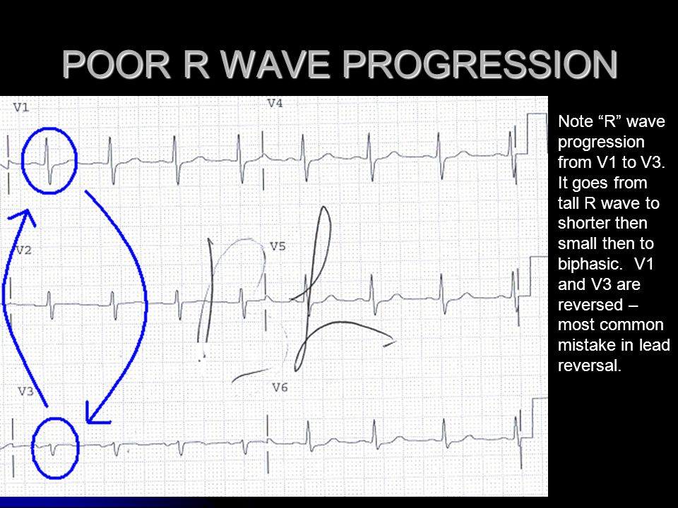 POOR R WAVE PROGRESSION