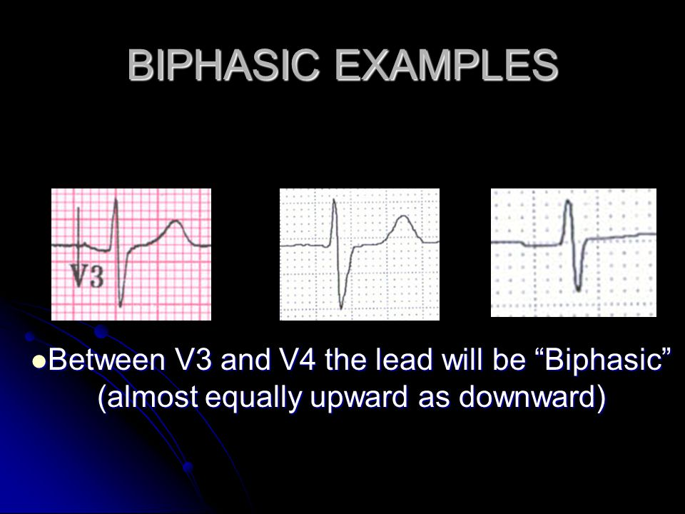 BIPHASIC EXAMPLES Between V3 and V4 the lead will be Biphasic (almost equally upward as downward)