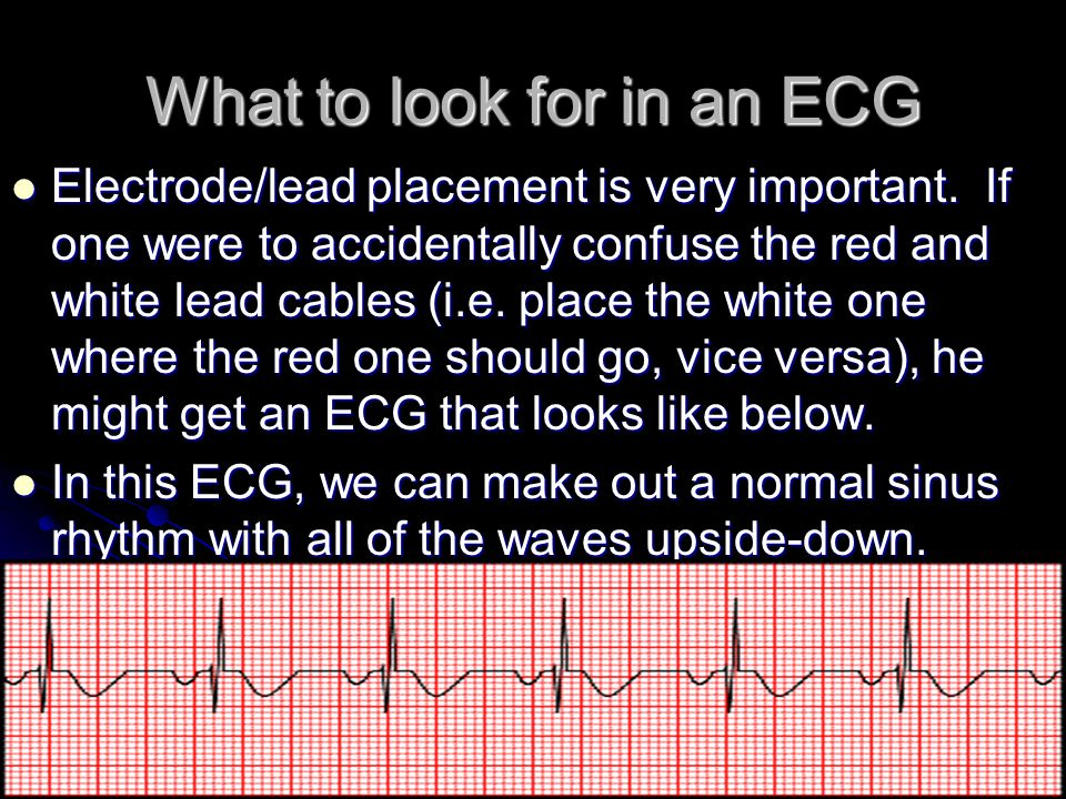 What to look for in an ECG
