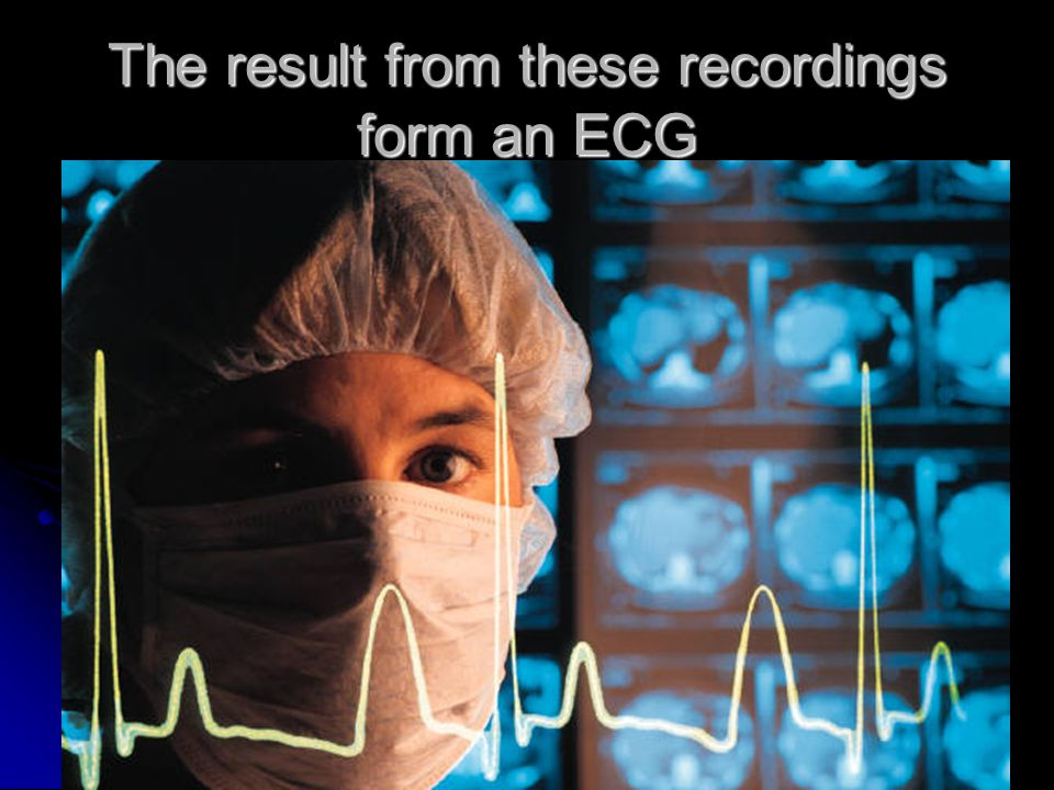 The result from these recordings form an ECG