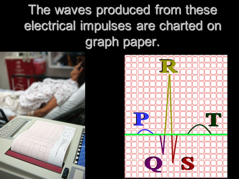 The waves produced from these electrical impulses are charted on graph paper.