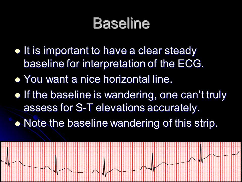Baseline It is important to have a clear steady baseline for interpretation of the ECG. You want a nice horizontal line.