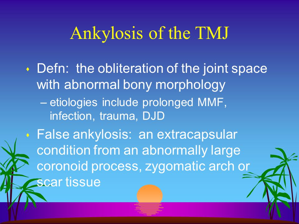 Ankylosis of the TMJ Defn: the obliteration of the joint space with abnormal bony morphology.