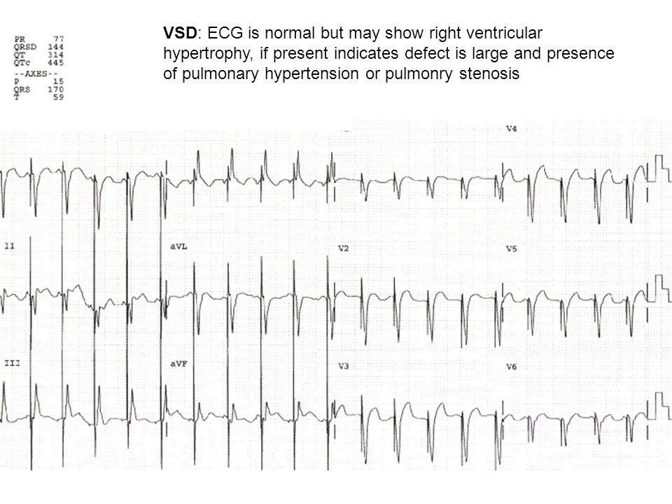 VSD: ECG is normal but may show right ventricular hypertrophy, if present indicates defect is large and presence of pulmonary hypertension or pulmonry stenosis