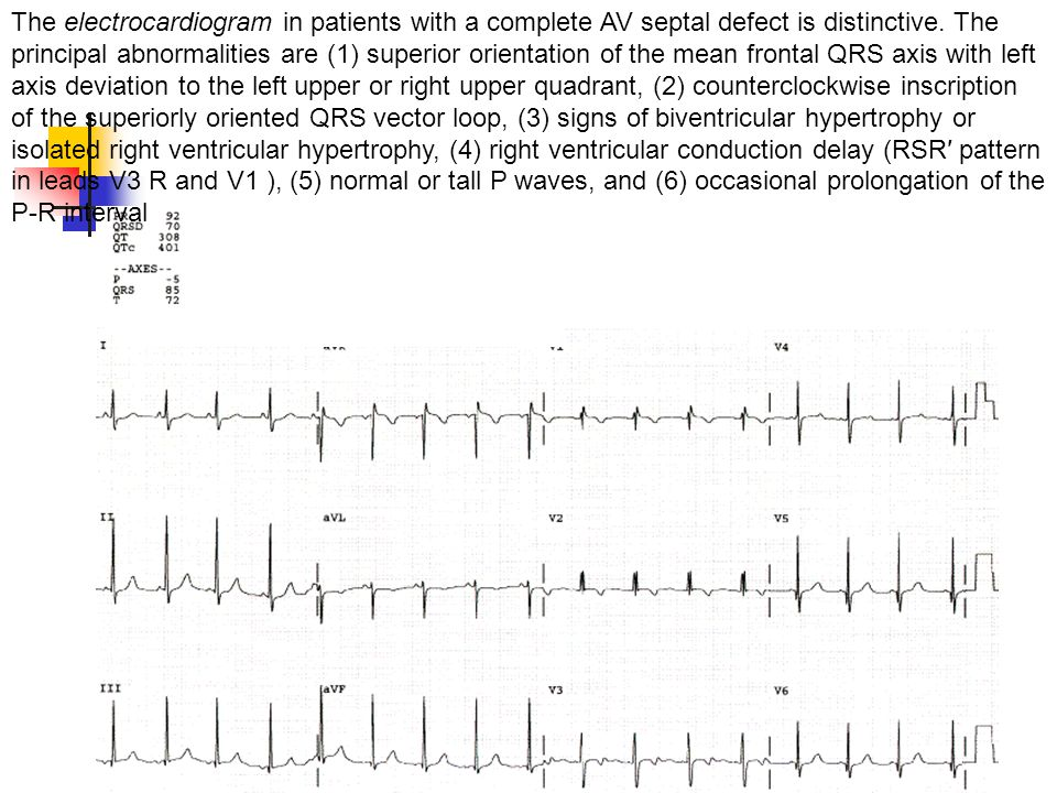 The electrocardiogram in patients with a complete AV septal defect is distinctive.