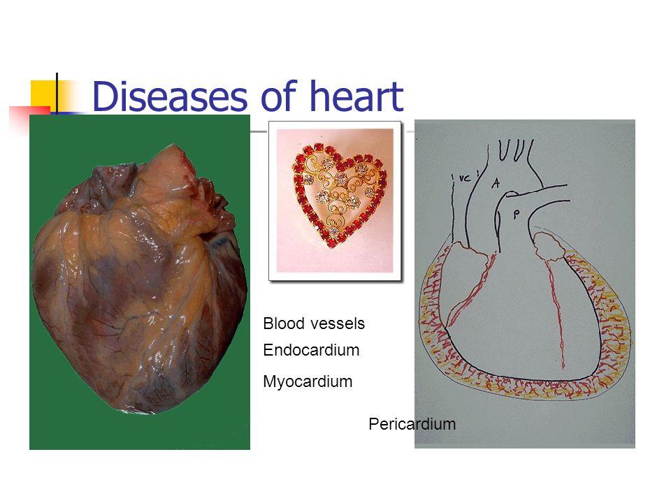 Diseases of heart Blood vessels Endocardium Myocardium Pericardium