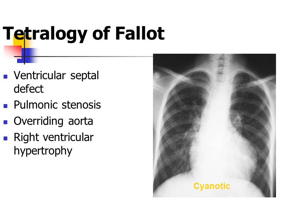 Tetralogy of Fallot Ventricular septal defect Pulmonic stenosis