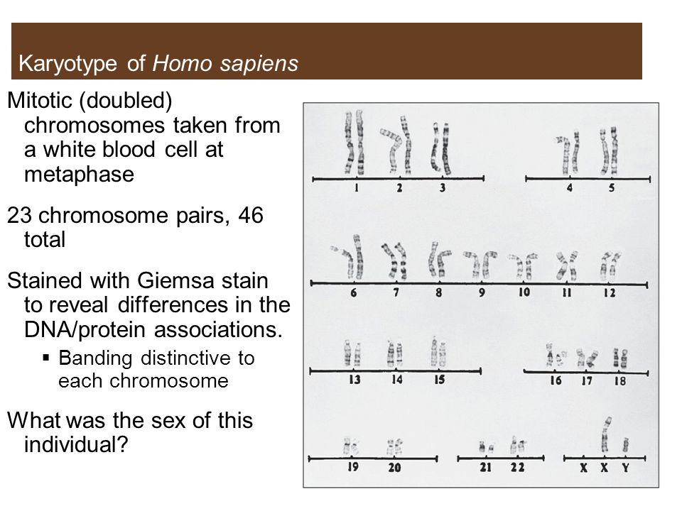 Karyotype of Homo sapiens
