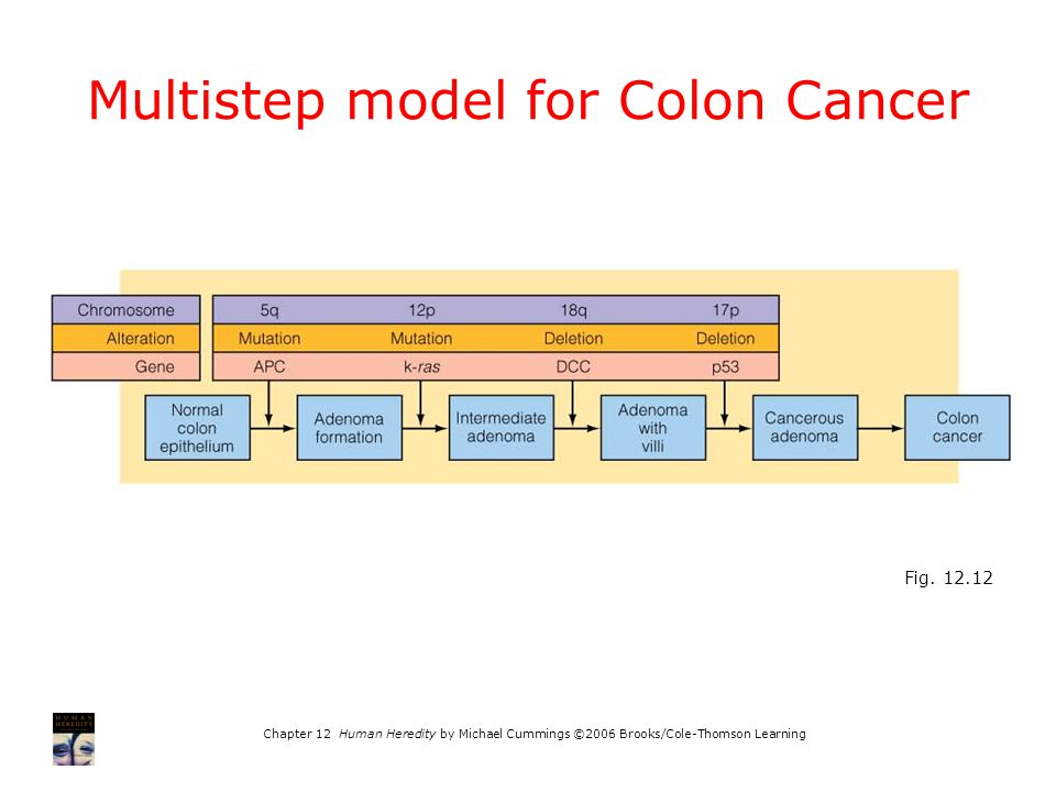 Multistep model for Colon Cancer