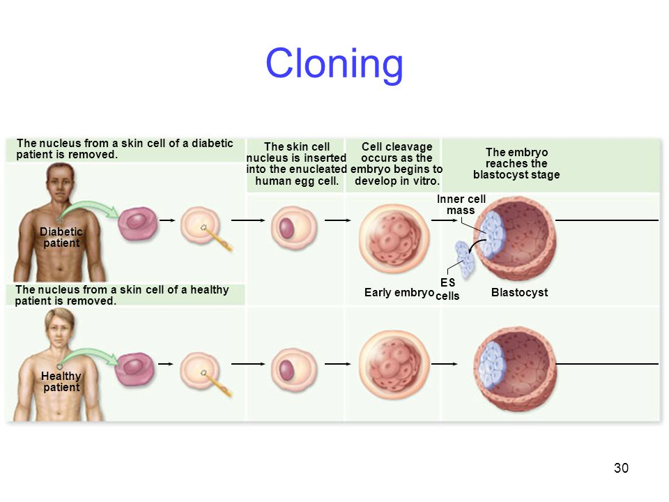 Cloning The skin cell nucleus is inserted into the enucleated