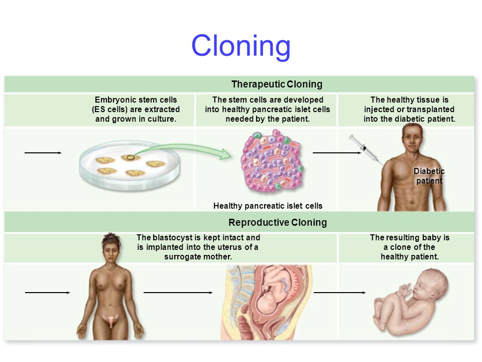 Cloning Therapeutic Cloning Reproductive Cloning Embryonic stem cells