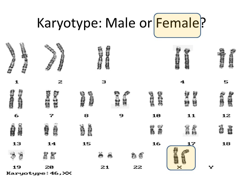 Karyotype: Male or Female