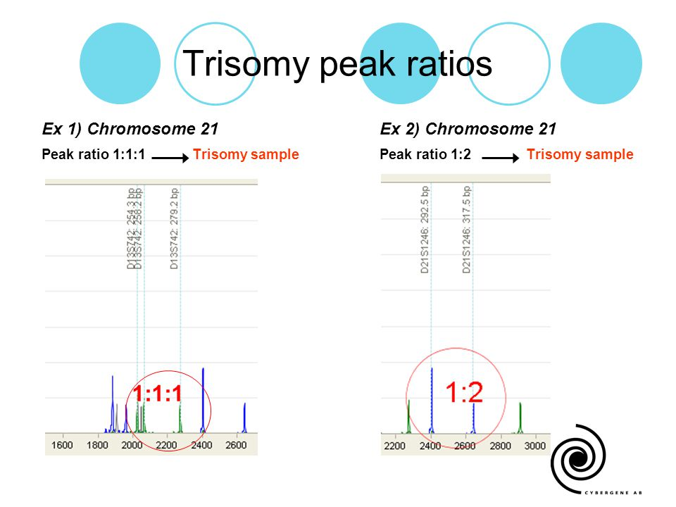 Trisomy peak ratios 1:1:1 Ex 1) Chromosome 21 Ex 2) Chromosome 21