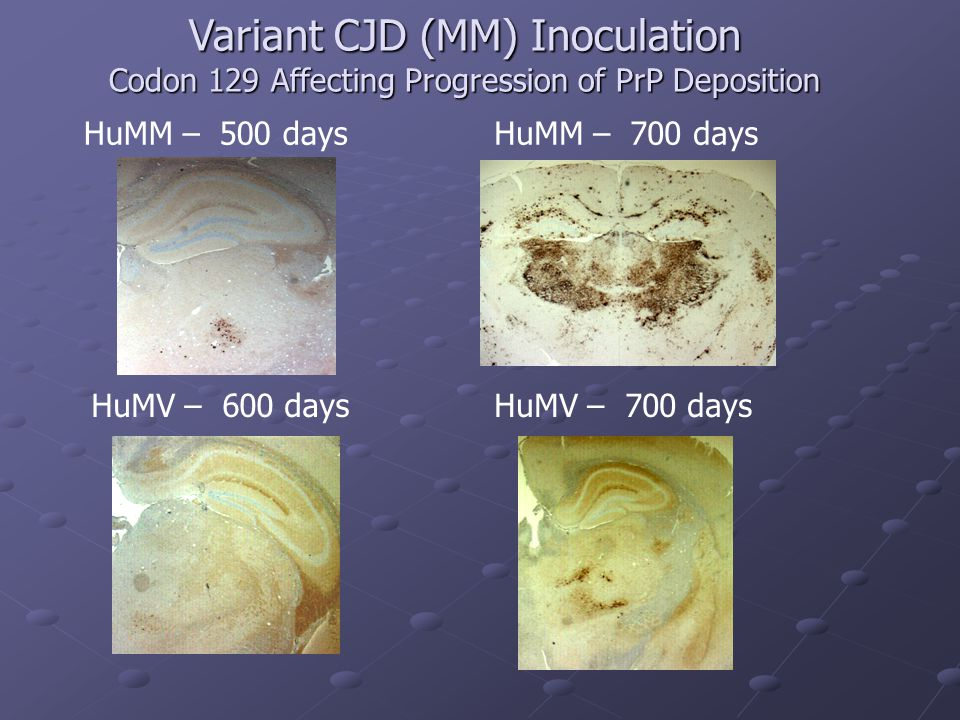 Variant CJD (MM) Inoculation Codon 129 Affecting Progression of PrP Deposition
