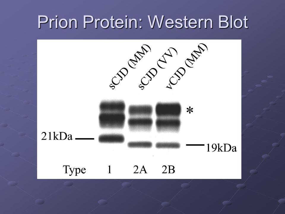 Prion Protein: Western Blot