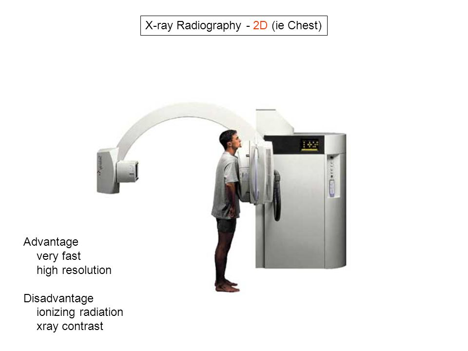 X-ray Radiography - 2D (ie Chest)